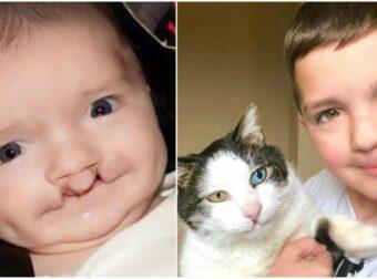 7χρονος δεχόταν bullying για την εμφάνισή του μέχρι που βρήκε ένα γάτο ίδιο με αυτόν